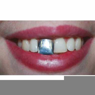 Zilveren opzet tand voor volwassenen